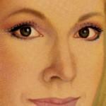 Aplicación de botox en los ojos