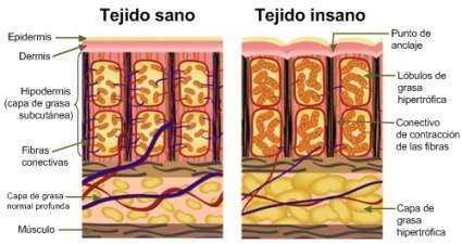 Diferencias entre el tejido de piel sano y el tejido de piel con Celulitis