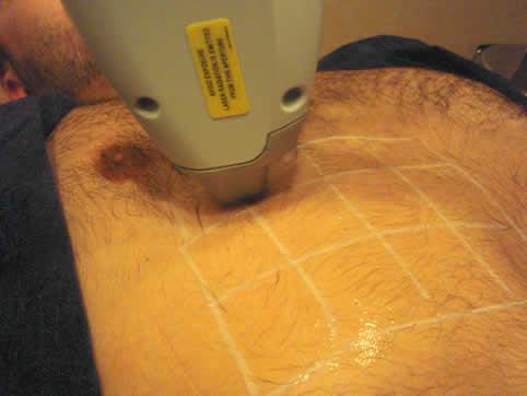Láseres empleados en depilación