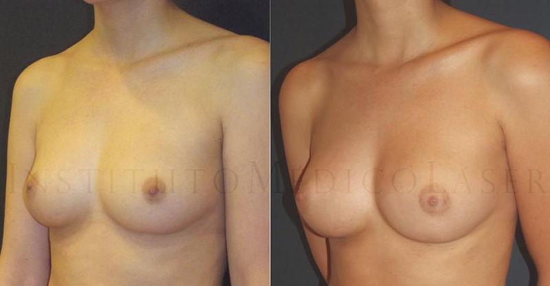 Antes y después del aumento de mamas con Lipotransferencia