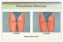 Resultados Slim Lipo